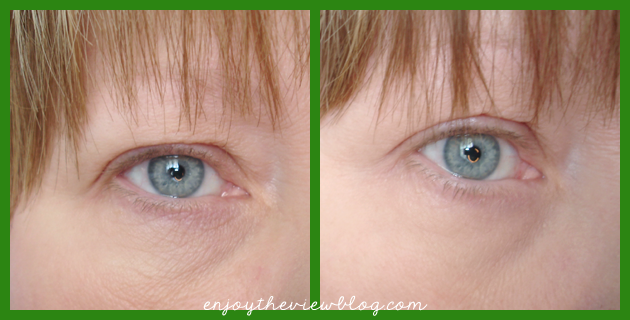 Sudden Change Under-Eye Firming Serum - before and after pictures